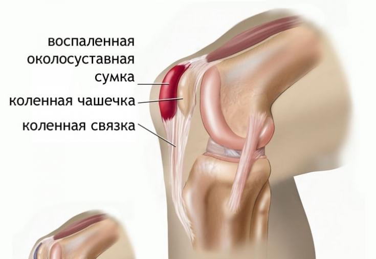 Болят суставы в коленях причина артралгия суставов кистей рук