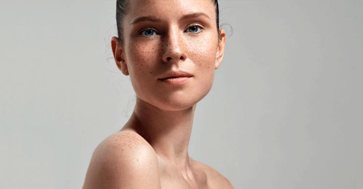 Почему проявляется гиперпигментация на возрастой коже, и как с ней бороться