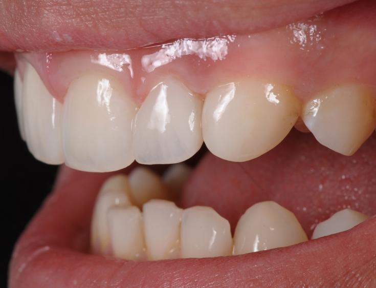 Почему возникают пятна на зубах: формирование гипоплазии эмали