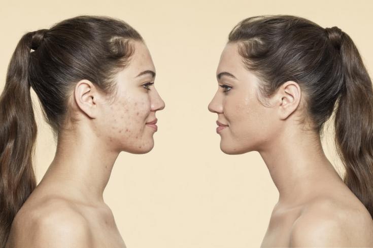 Позднее акне у женщин: особенности выбора косметических пилингов