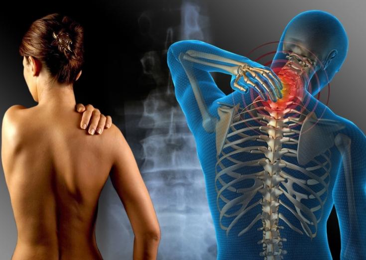 Проблемы с шейным отделом позвоночника симптомы
