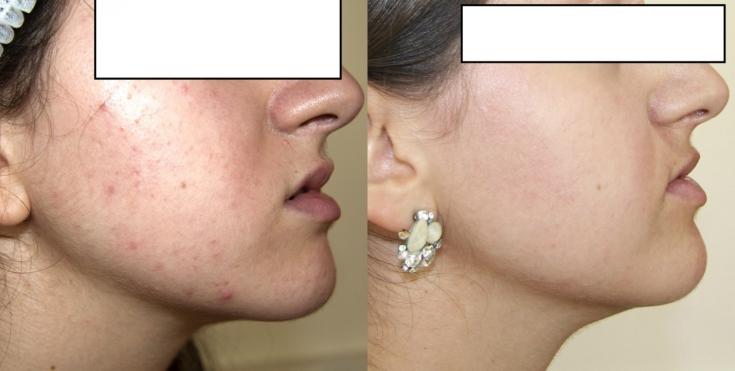 Практический опыт применения кислородной косметики для лечения акне на лице
