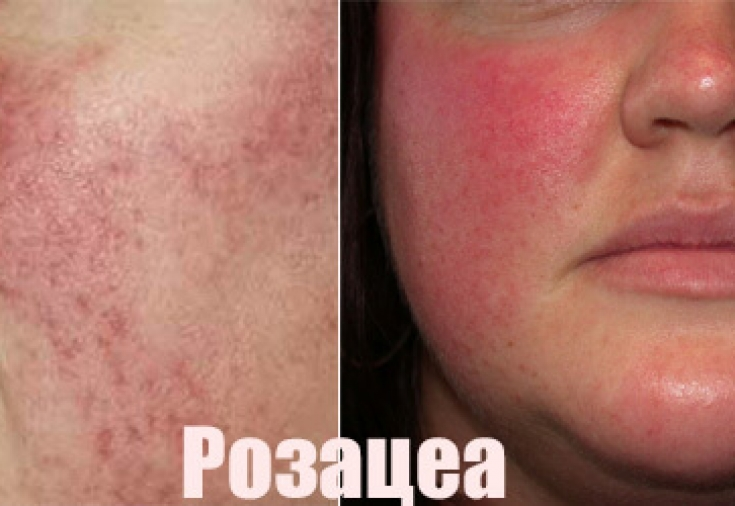 Правила ухода за кожей при болезни розацеа - Estet-Portal