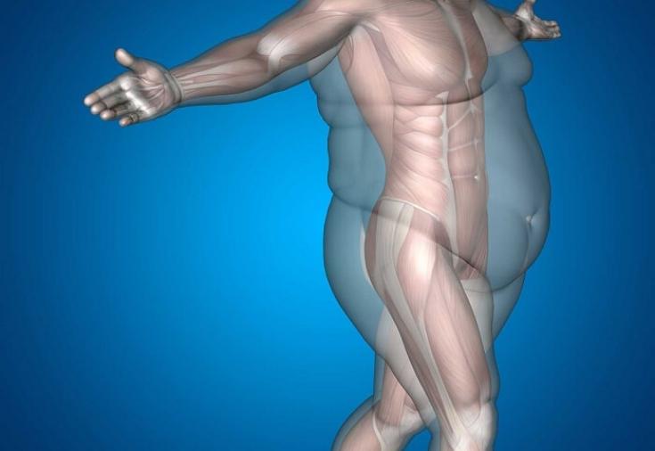 Заболевание почек и лишний вес