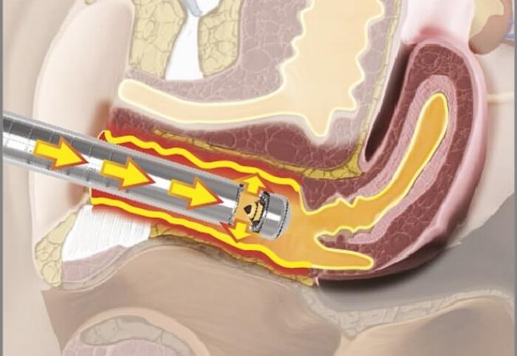 Лазерные технологии в гинекологии