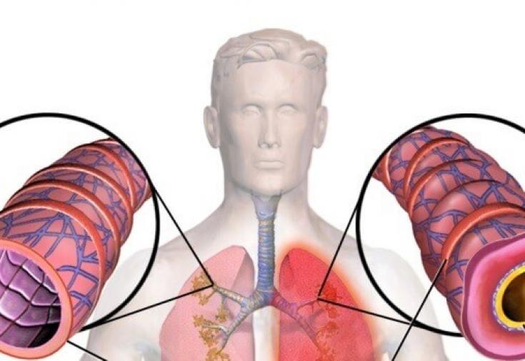 Приступы одышки: какие заболевания провоцируют этот симптом ...