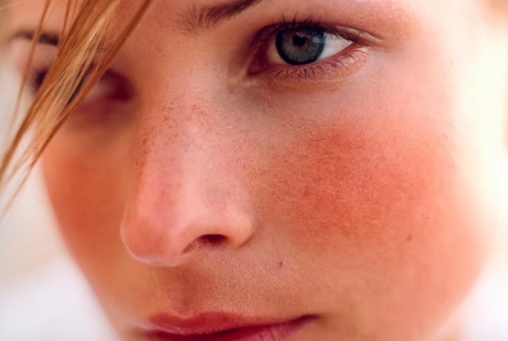 Признаки розацеа и методы эффективной косметической помощи