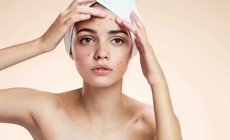 Проблемная кожа лица: как выбрать подходящий уход
