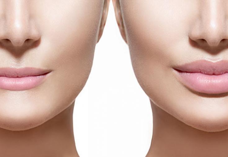 Увеличение губ гиалуроновой кислотой: преимущества, подготовка и проведение процедуры