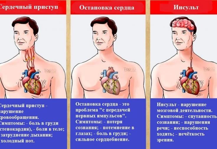 Различия между инсультом и инфарктом, сердечным приступом - Estet ...