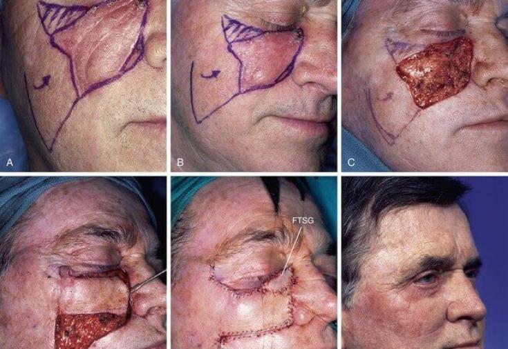 facial-skin-flap-repair-pictures-asian-girls-in-swetshops
