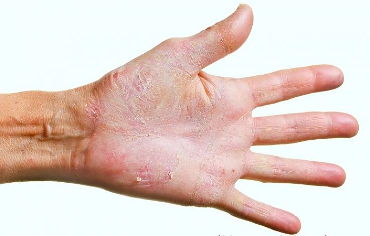 Руки не лгут: особенности клинической картины заболеваний кожи рук