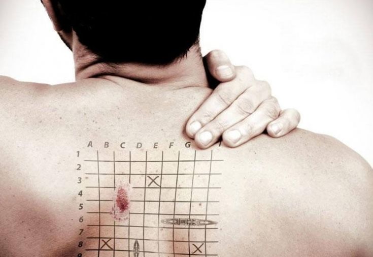 Рак кожи: симптомы и признаки, как выглядит рак кожи на начальной стадии, причины карциномы кожи