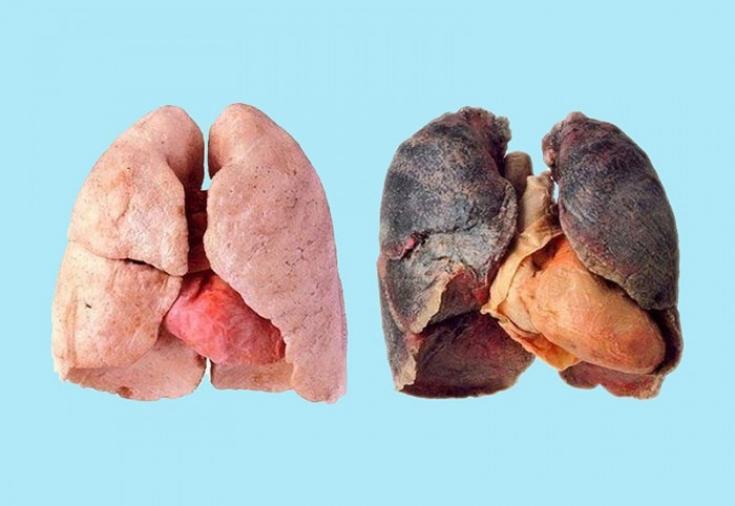 Как очистить лёгкие после курения: методы оздоровления