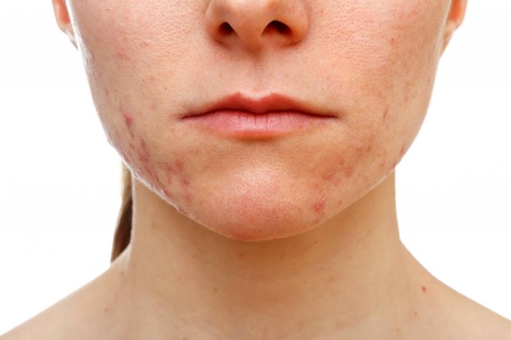 Себорейный дерматит на лице: как избавиться от косметического дефекта