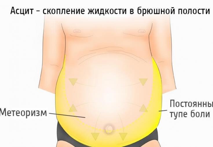 Вода в брюшной полости лечение