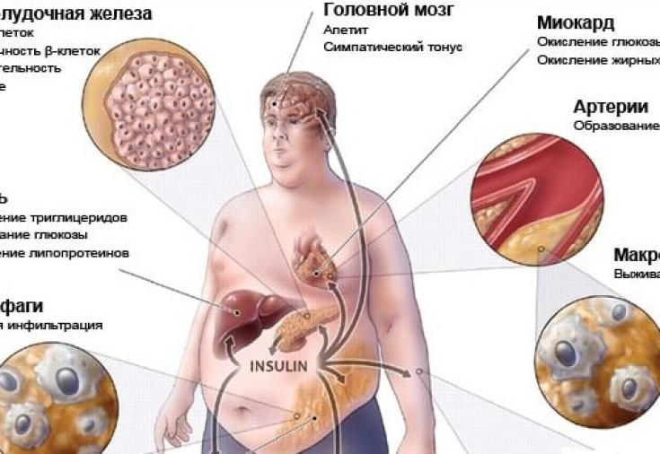 """Смертельный квартет"""" ожирения, сахарного диабета, повышенного ..."""
