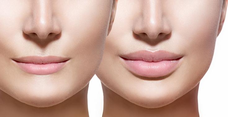 Соблазнительные уста: секрет оптимальной формы и объема губ
