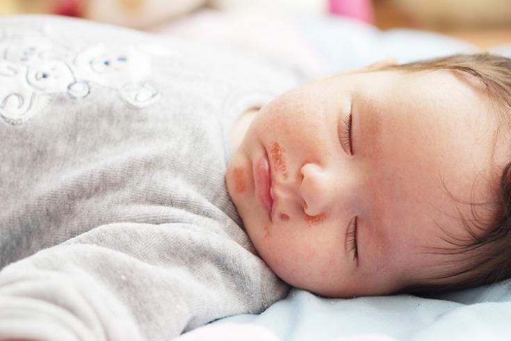 Стрептококовая инфекция: особенности течения стрептодермии у детей