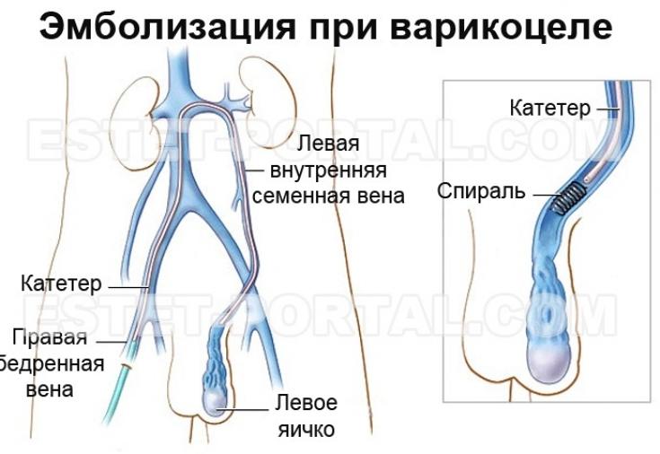Своевременное лечение варикоцеле поможет избежать бесплодия ...