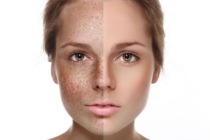 Тусклый цвет лица что делать — Уход за лицом