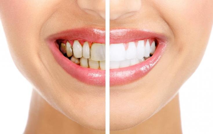 Картинки по запросу апельсиновая корка против зубного камня