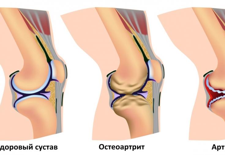 Здоровье суставы по колени эндопротезирование коленного сустава на василеостровском