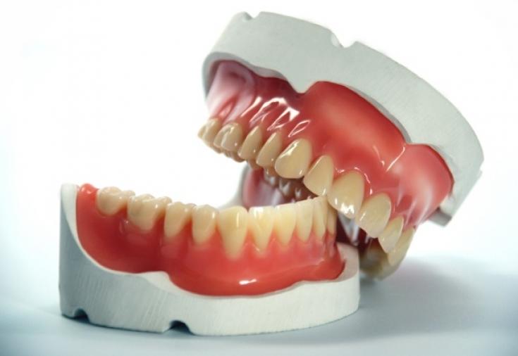 Зубные протезы – виды. Съемные, несъемные зубные протезы, импланты.