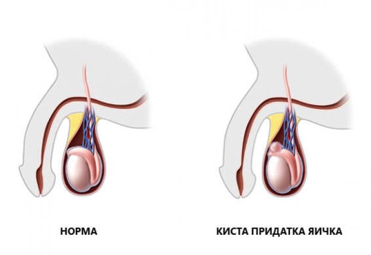 Как лечить сперматоцеле в мошонке
