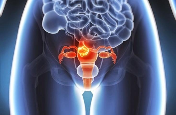 Вагинит у женщин: одно из осложнений - развитие бесплодия