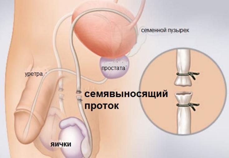 Сперма ограничена в мужском организме