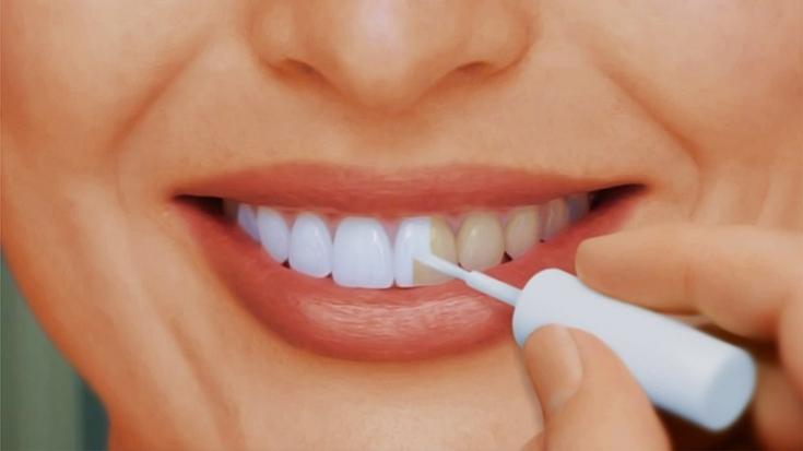 Средства для отбеливания зубов у стоматолога