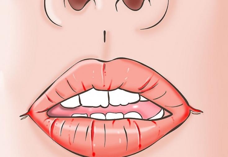 Гинекология воспаление на губе