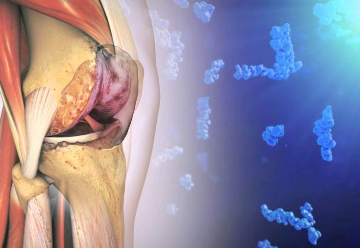 Инъекции при остеоартрозе коленного сустава