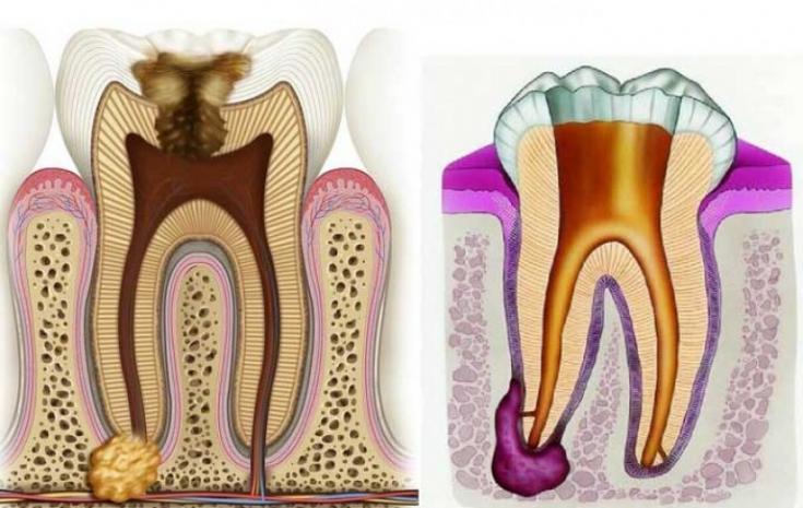 Симптомы воспаления корня зуба что делать и как лечить в домашних условиях