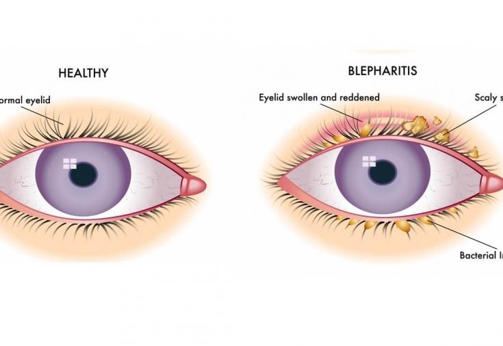 Воспаление краев век: причины и симптомы блефарита - Estet-Portal