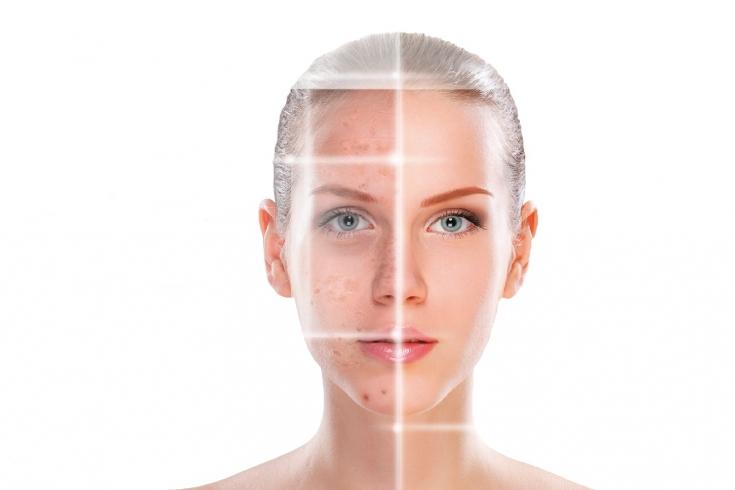 Возможности кислотного пилинга для лица при коррекции устойчивой пигментации