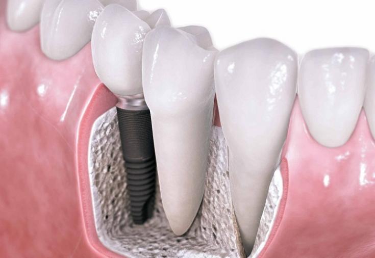 Имплантация зубов вологда отзывы