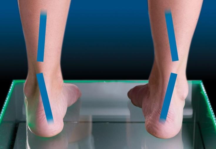 Обувь на каблуках при артрозе коленного сустава