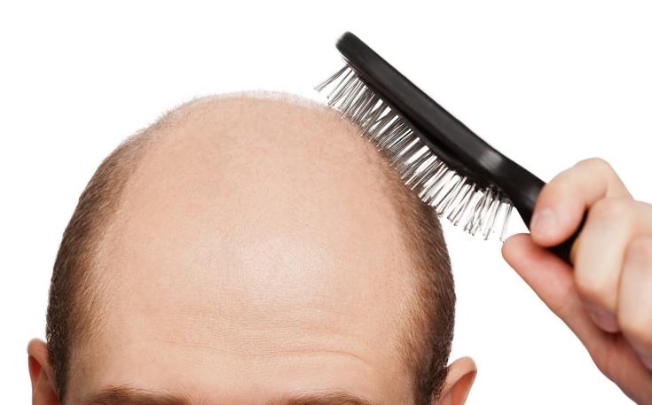 Выпадение волос у мужчин: причины, виды, лечение