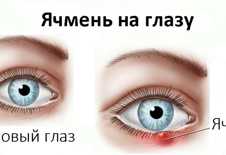писяк на глазу лечение