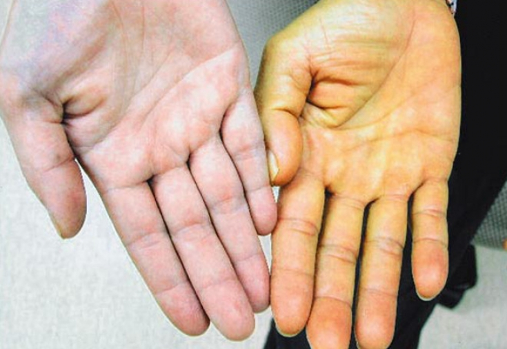 Механическая желтуха (обтурационная и подпеченочная): прогноз жизни, симптомы, лечение и что это такое?