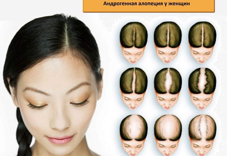 Адрогенная алопеция у женщин: причины и лечение андрогенетической алопеции у женщин