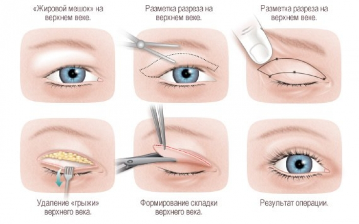 мешки под глазами гинекология