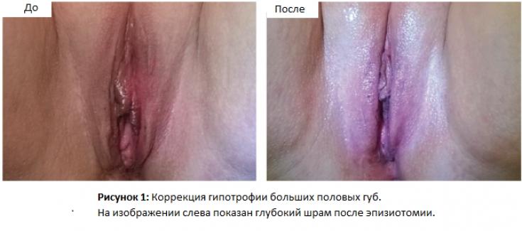 Горчичное обертывание фото до и после для топиария
