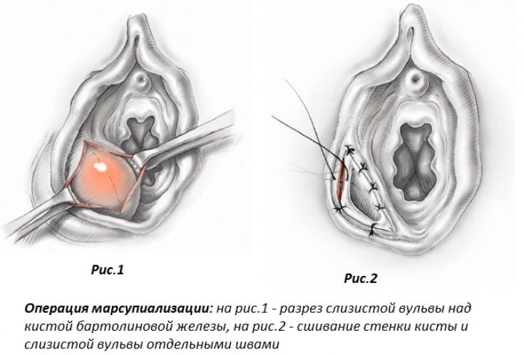 Способы лечения абсцесса бартолиновой железы