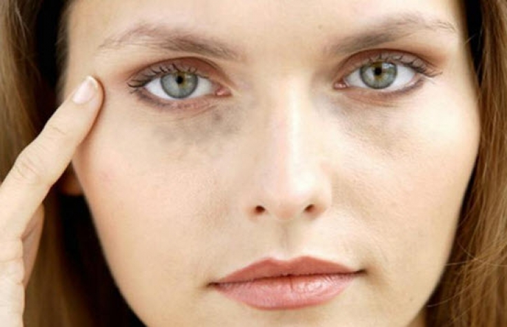 Гиалуроновая кислота от морщин под глазами - оставаться молодой легко