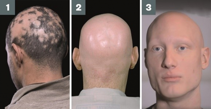 A hairraising history of alopecia areata