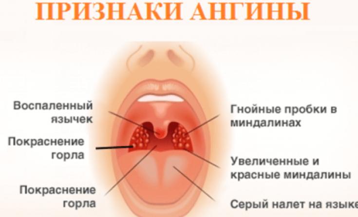Как вылечить хроническую ангину без антибиотиков thumbnail