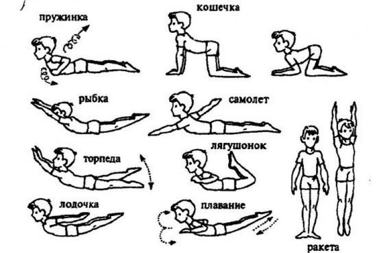 Лфк при сколиозе с упражнениями в картинках